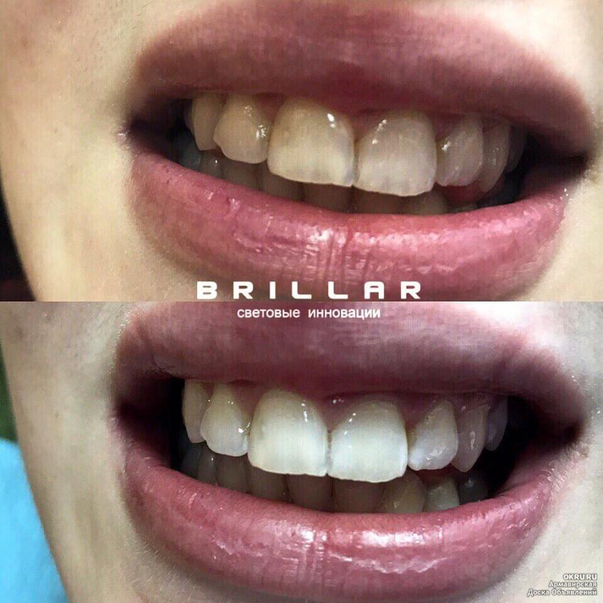 Отбеливание желтых зубов